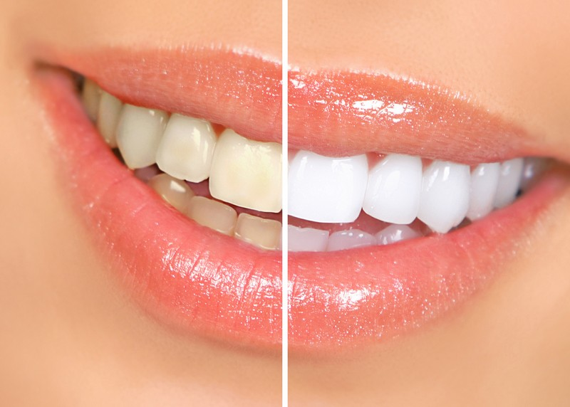 Teeth Whitening  Anniston, AL